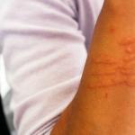 Alergie skórne
